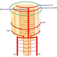 Figura 1A: Esquema 3D sistema vertebrobasilar – www.neuroangio.org