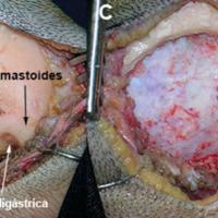 Figura 1: Fotos del abordaje. A. se encuentra marcada la incisión, la ranura digástrica y la apófisis mastoides. B. Foto luego de la disección subperióstica. C. Exposición dural. D. Apertura dural.