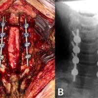 Figura 5: A) Cierre dural hermético y artrodesis instrumentada con tornillos transarticulares. B) Se corrobora correcta colocación de tornillos utilizando la técnica de Magerl. <br />