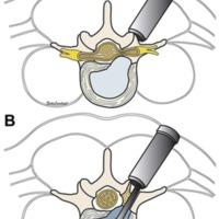 Fusión intersomática lumbar extraforaminal <br /><br /> mínimamente invasiva (MIS-ELIF).<br /><br /> Premio Senior Neuroraquis 2017
