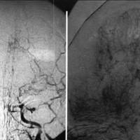 Fig. 1. Imagenpreoperatoria. Red anatomática anómala y falta de llenado arterial supradineoideo