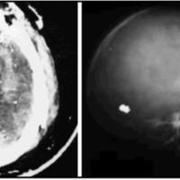 Fig. 1 A. TAC cerebro sin contraste. Hematoma intraparenquimatoso fronto-parietal izquierdo, esquirlas metálicas y óseas. Imagen con densidad aérea en línea media. B. Placa radiográfica de cráneo, perfil. Orificio de entrada a nivel frontal, esquirlas metálicas, proyectil alojado en la región occipital. Fractura parietal.