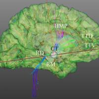 Reconstrucción con tractografía con tensor de difusión del sistema reticular activador ascendente (SRAA). Vista lateral de la tractografía del SRAA, que demuestra vías ascendentes desde el tallo cerebral. través del tálamo. del hipotálamo bilateralmente proyectándose. ambos lóbulos frontales basales. El complejo talámico (CT) está representado con una región de interés esférica gris. RD. rafe dorsal; TTD. tracto tegmental dorsal; HMP. Haz medial del prosencéfalo; RM. rafe medio, TTV. tracto tegmental ventral, CT. complejo talámico.