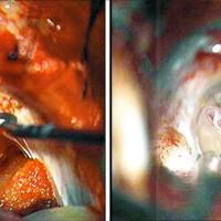 Schwannoma Vestibular: Abordajes y Fresado del Poro Acústico